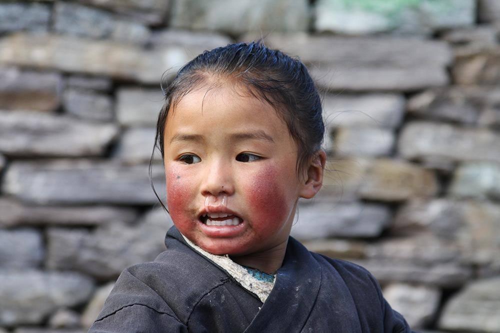 Guance rovinate dal freddo CiaoNamastè Nepal bambina